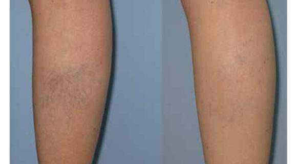 Leg veins treatment guidelines with Long Pulse (LP) Nd:YAG